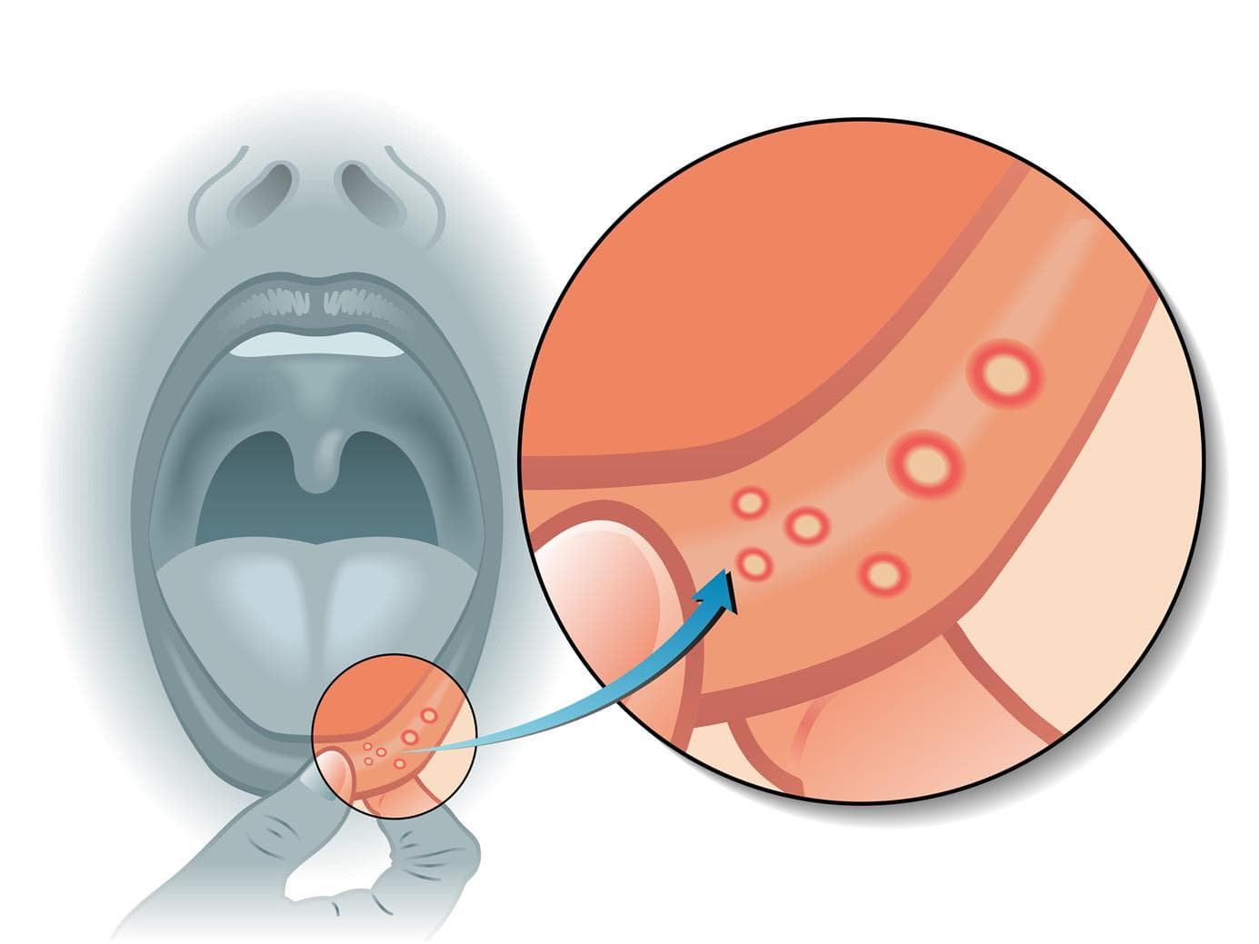 Aftae and sores in the mouth