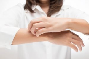 Eczema - itching on hands